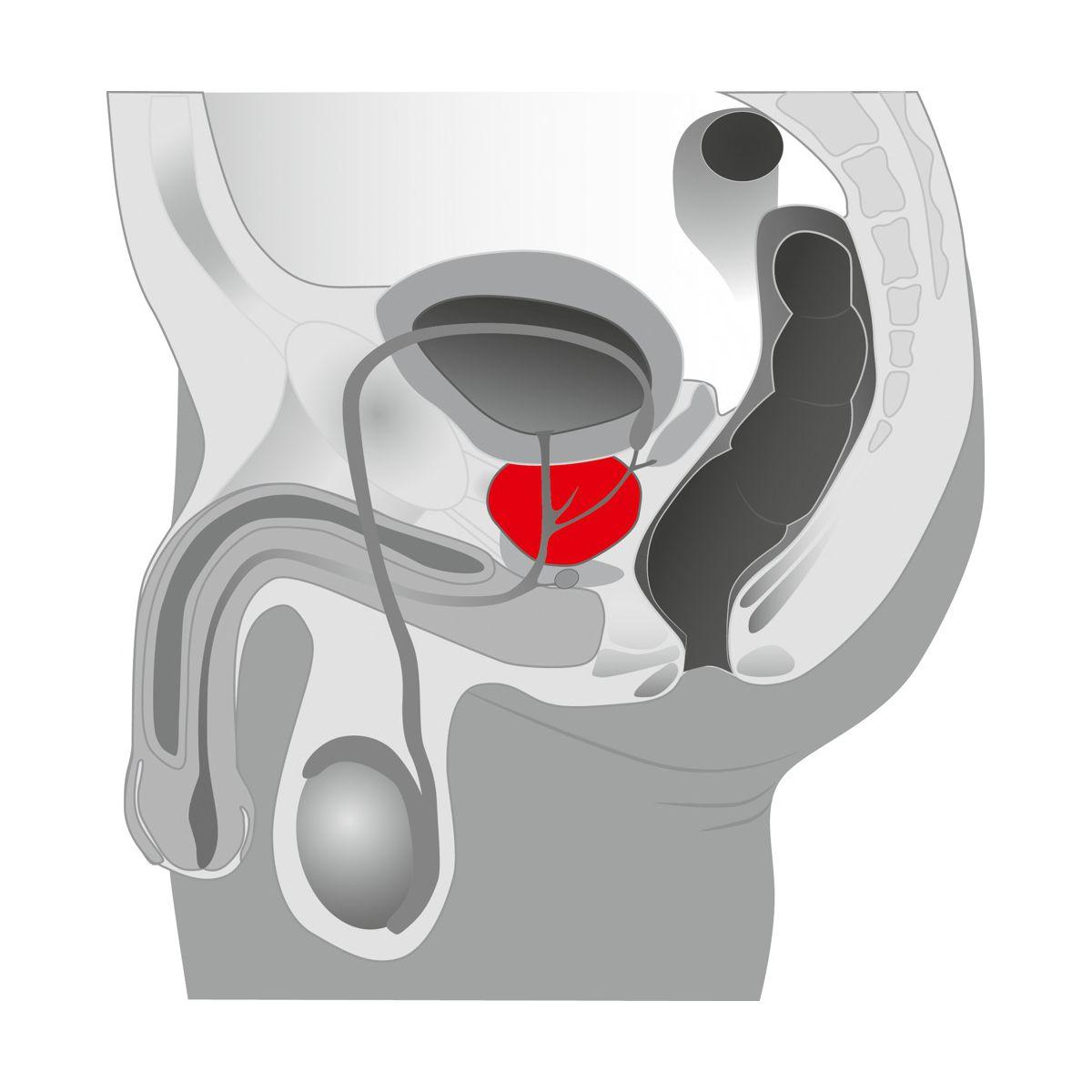 Ebony masajeador de próstata
